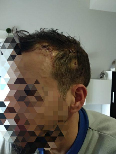Los agentes de la UIP acusados de maltratar a un menor marroquí en Melilla sufrieron salvajes lesiones